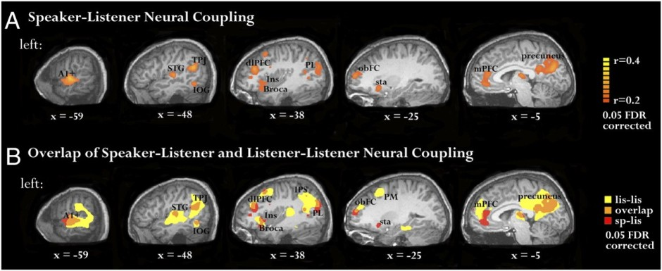 neurocouplingmodel_AB